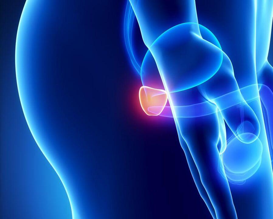 tumor na prostata benigno